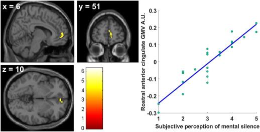 Publikacja naukowa nt. wpływu medytacji Sahaja Yoga na funkcje mózgu